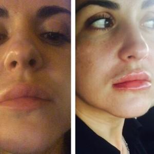 Увеличение губ недорого