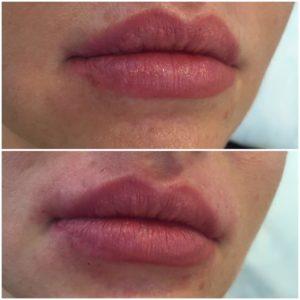 Увлажнение губ