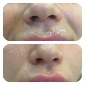 убрать носогубные складки гиалуроновой кислотой