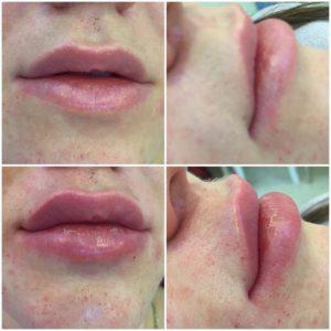 Увеличение губ volume