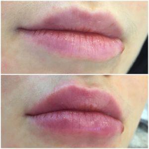 губы акция москва