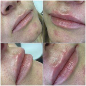 увеличение губ гиалуроновой кислотой фото до и после цена