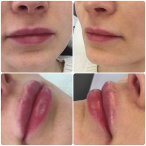 увеличение губ гиалуроновой кислотой цена в москве