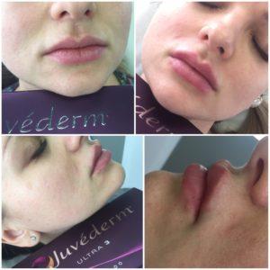 увеличение губ гиалуроновой кислотой 0.5 мл фото до и после