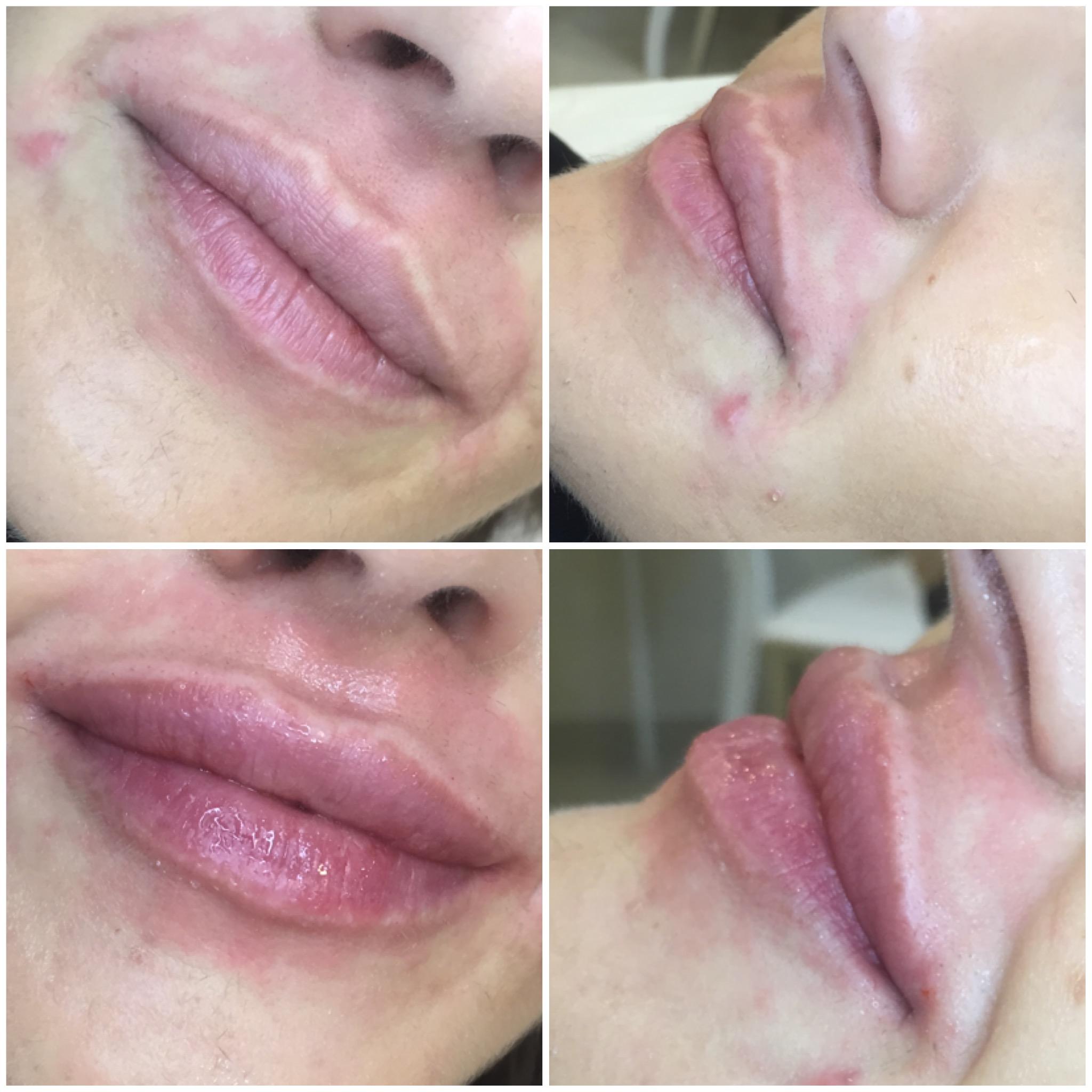 Пластика уздечки верхней губы: зачем нужно подрезание 34