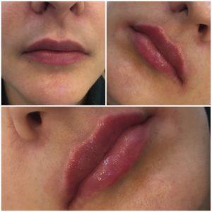 увеличение губ филлером фото до и после