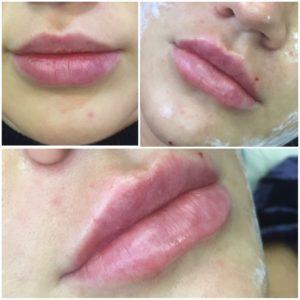 увеличение тонких губ фото до и после