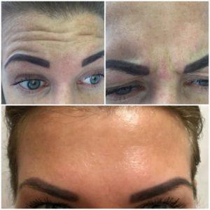 ботокс для лица до и после фото