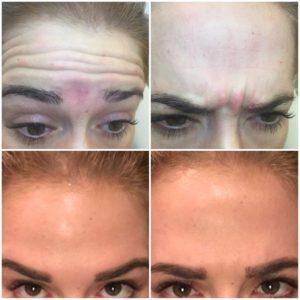 ботокс для лица фото до и после цена