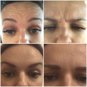 ботокс для лица фото до и после