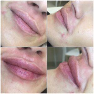 гиалуроновая кислота в губы до и после