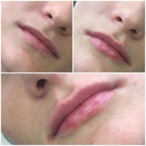 гиалуроновая кислота в губы цена москва