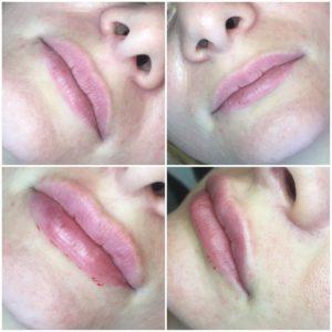 гиалуроновая кислота в губы 1 мл фото до и после