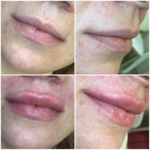 губы гиалуроновая кислота до и после фото