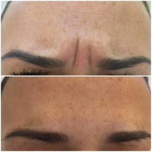 ксеомин до и после фото