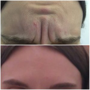 ксеомин фото до и после