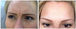 ботокс лица до и после