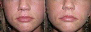 фото носогубных складок до и после филлеров