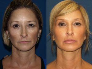мезонити для подтяжки лица до и после