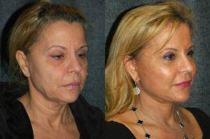 мезонити для подтяжки лица фото
